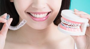 5 Different Types of Retainers