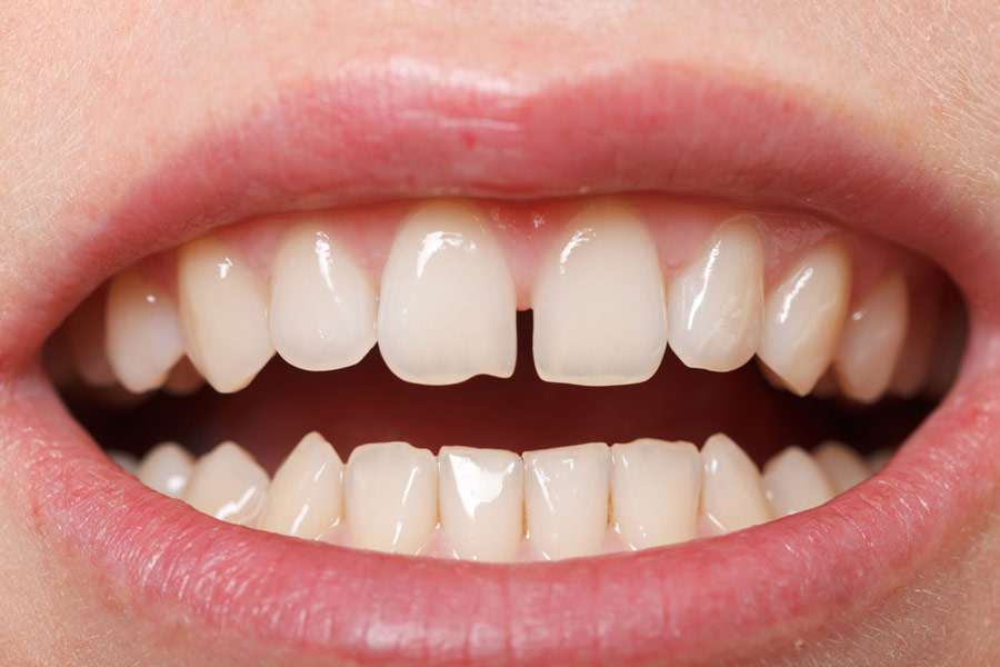 A gap exists between the front teeth