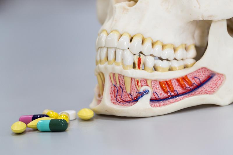 Antibiotics for Gum Disease Best Prescription and OTC Options