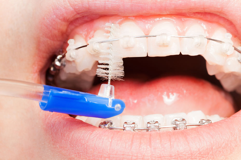 Are Damon Clear Braces a Good Choice for Me