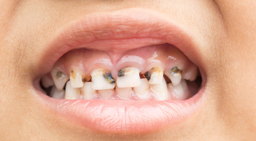 Bulimia Teeth Damage What You Need to Know and How to Stop It