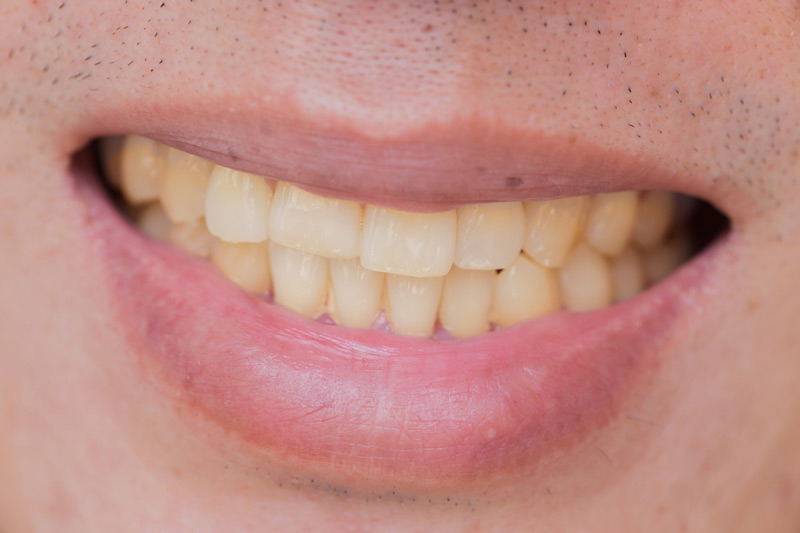 Causes of Yellow Stains on Teeth