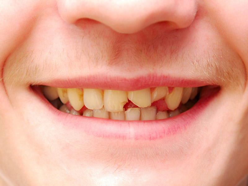 Cracked Front Tooth Here Are Five Things You Should Do Right Away