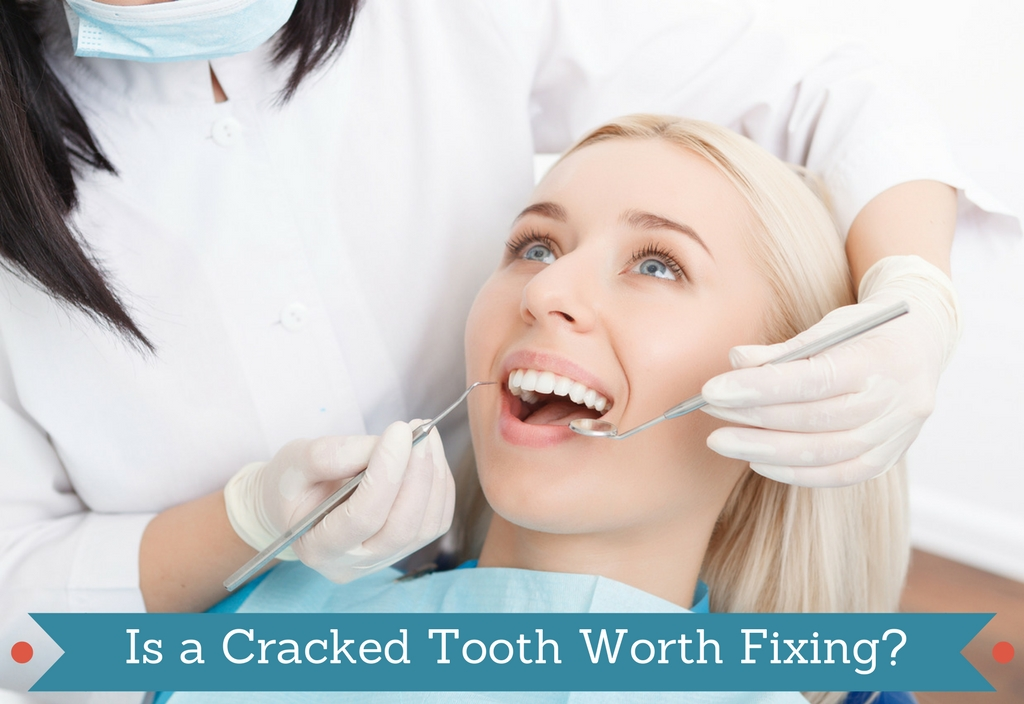 Is a Cracked Tooth Worth Fixing