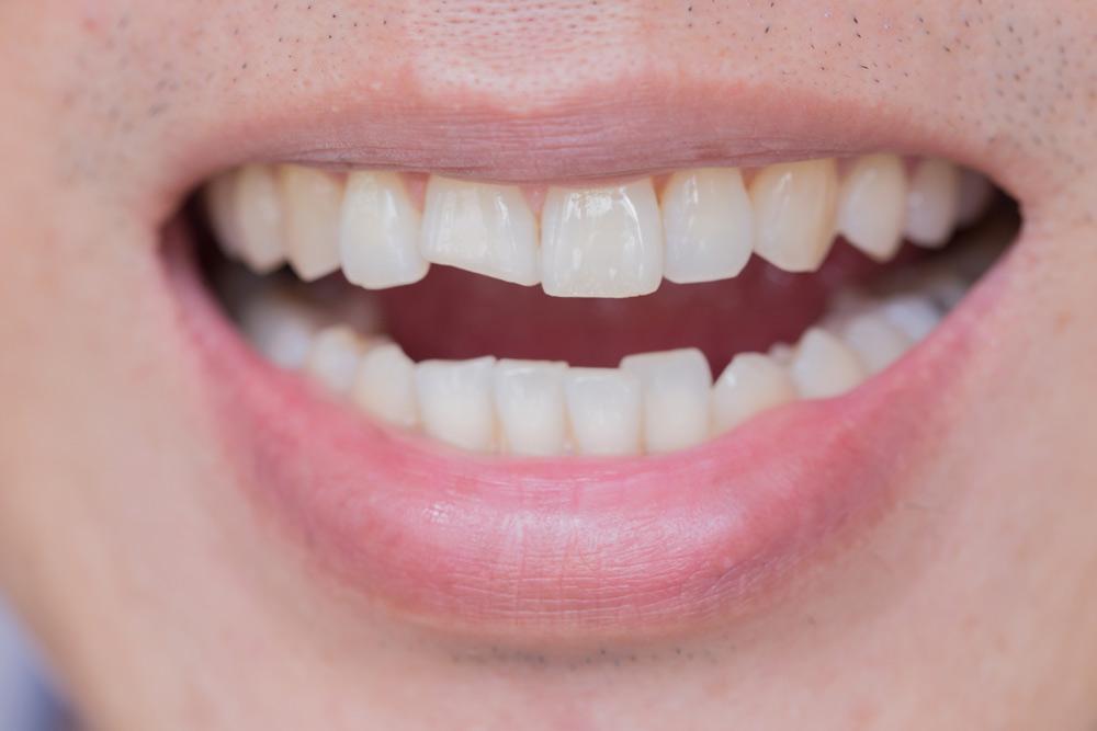 Dental Bonding vs. Veneers The Difference