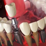 Dental Bridge vs. Implant- Finding What's Best for You