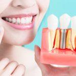 Dental Implants vs. Bridges Which One is Better