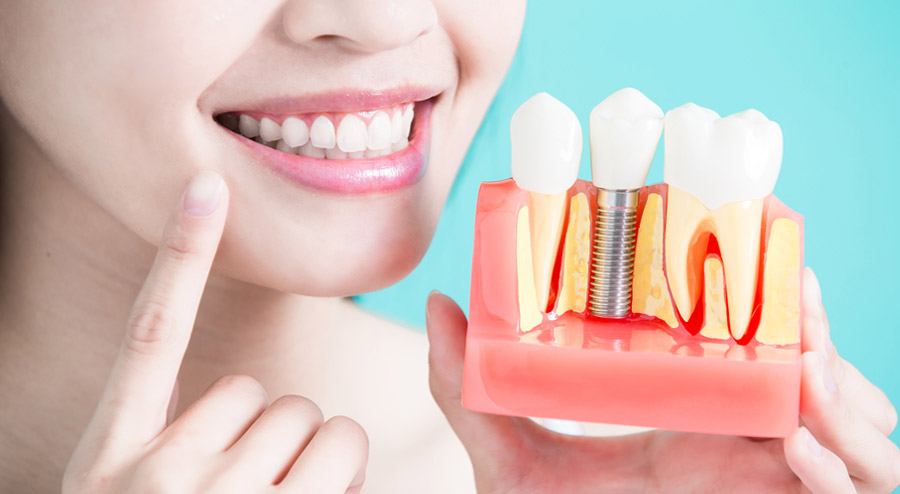 Dental Implants vs. Bridges Which One is Better