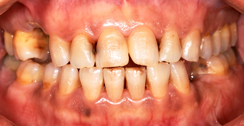 Dip Gum Disease and How Tobacco Effects Your Oral Health