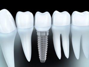 Emergency Dentist SouthHampton
