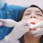Expander Teeth FAQs and General Info