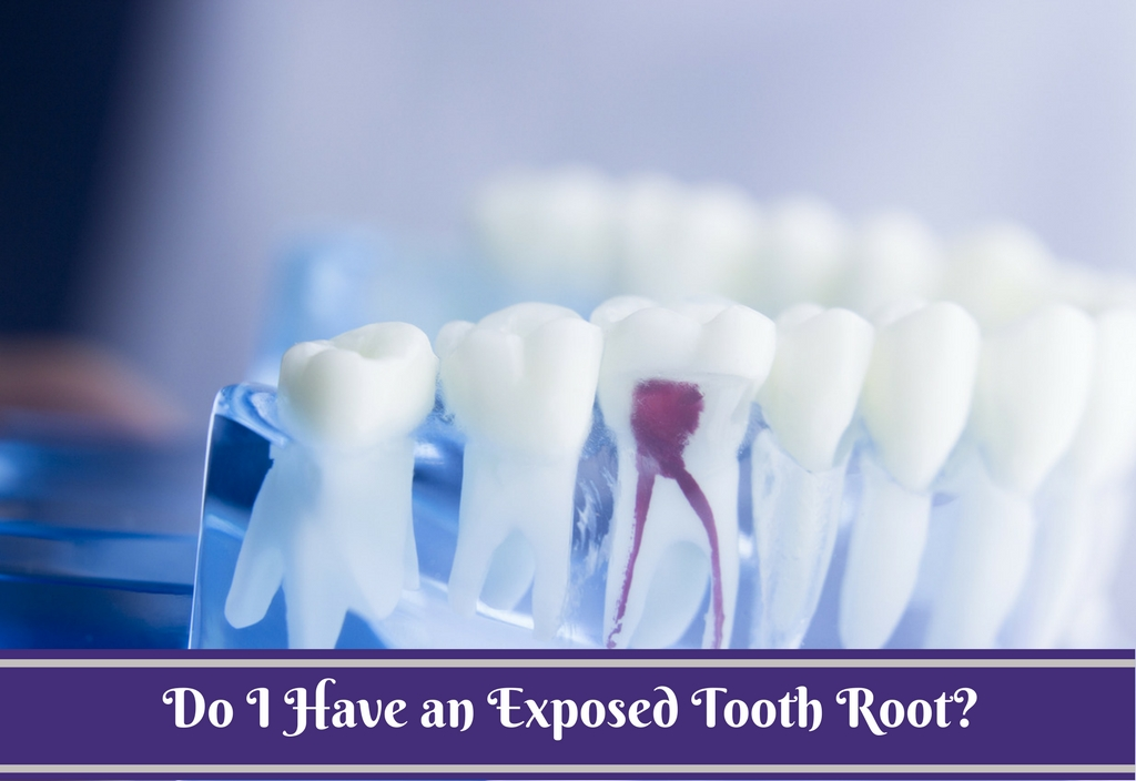 Exposed Tooth Root