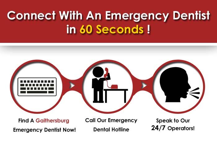 Emergency Dental Gaithersburg MD