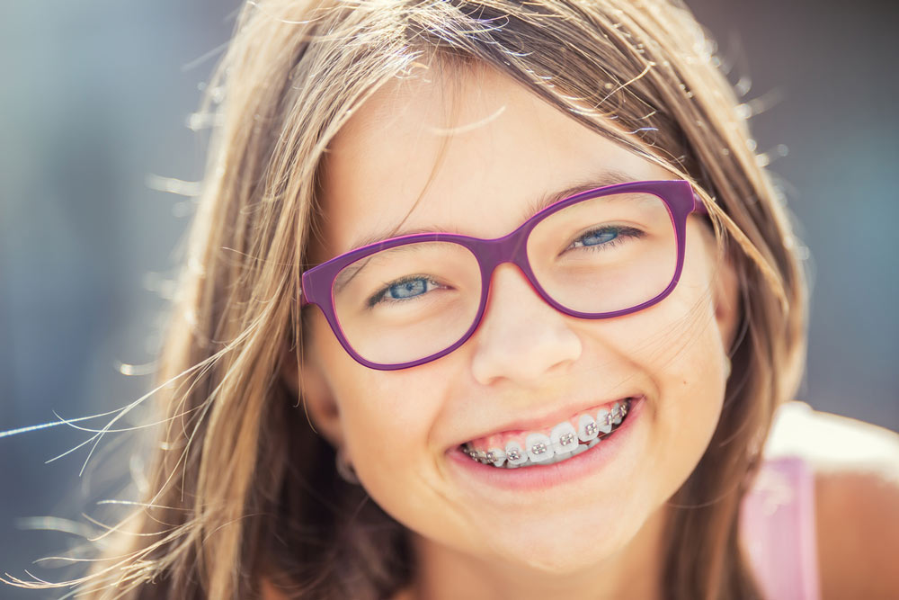 Gum for Braces The Surprising Benefits of Chewing Gum with Braces