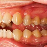 How to Remove Tartar from Teeth Without a Dentist- Tips to Control Tartar Buildup