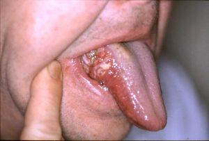 teeth Infection