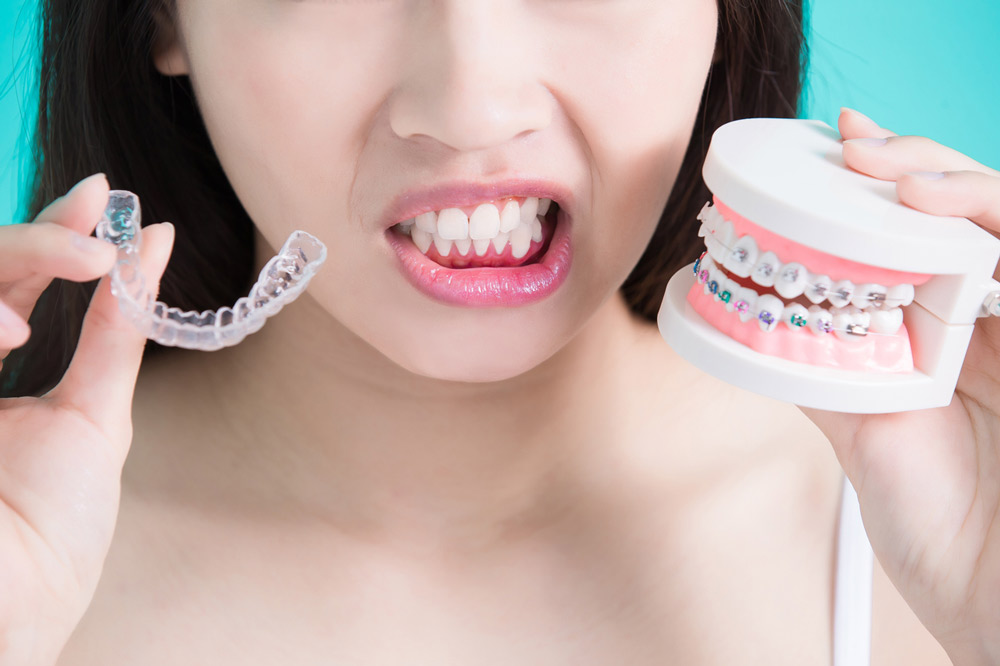 Invisalign vs. Braces Which Is Right for You