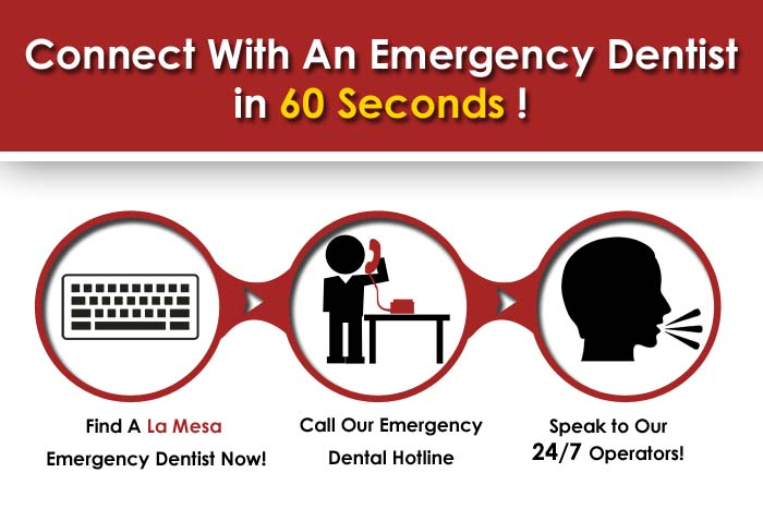 Emergency dentist La Mesa CA