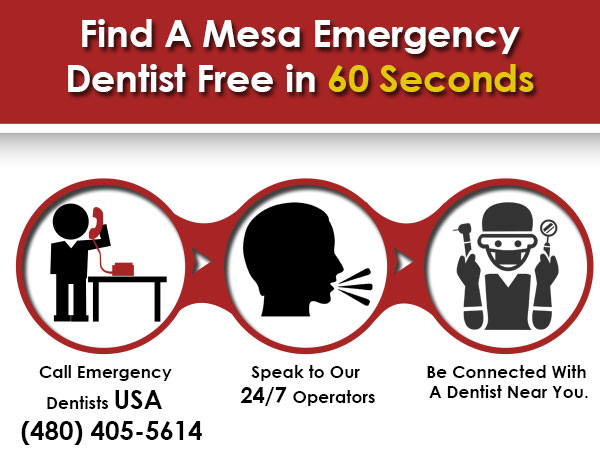 emergency dental Mesa