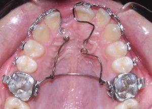 Orthodontia