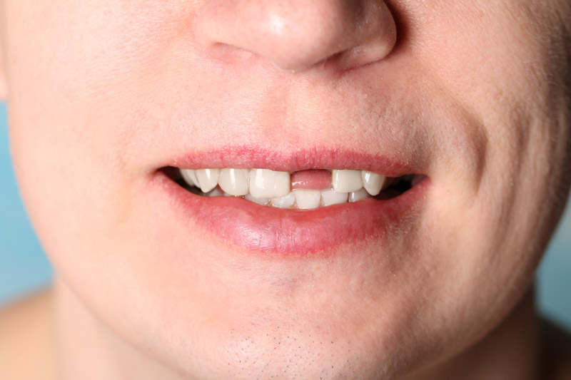 Replace Missing Front Tooth