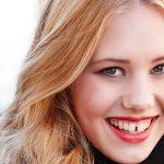 Teeth Bonding for Gaps between Your Front Teeth