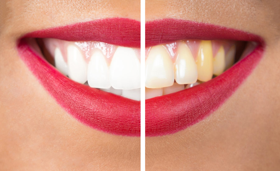 Teeth Whitening Services and Methods What's Your Best Option