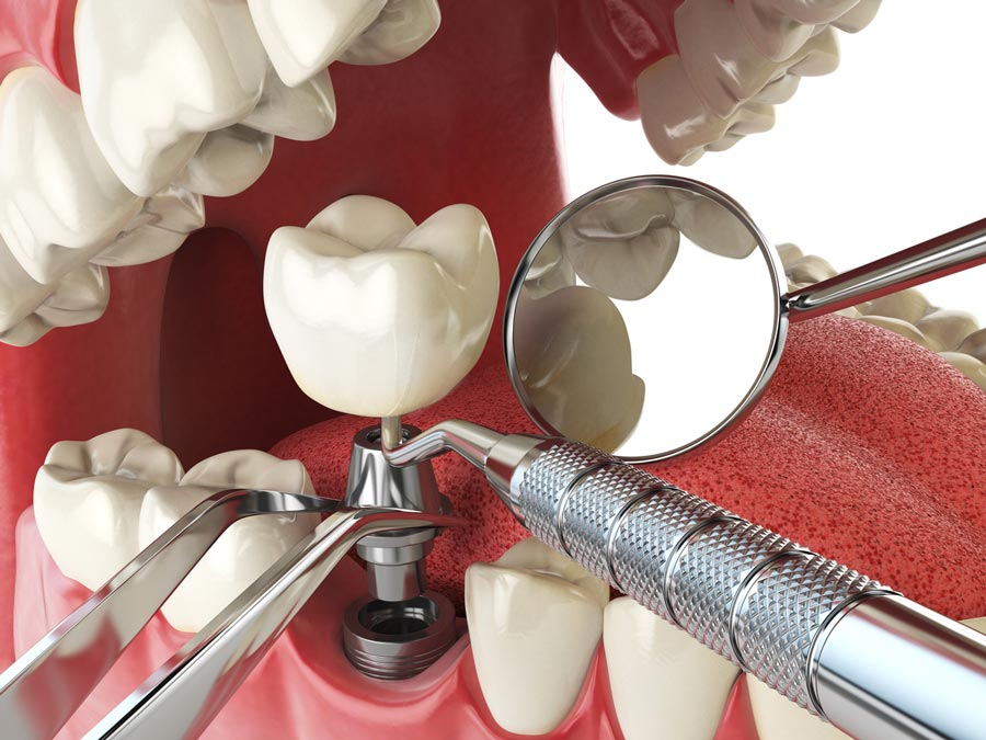 The Benefits of Performing Same Day Dental Implants