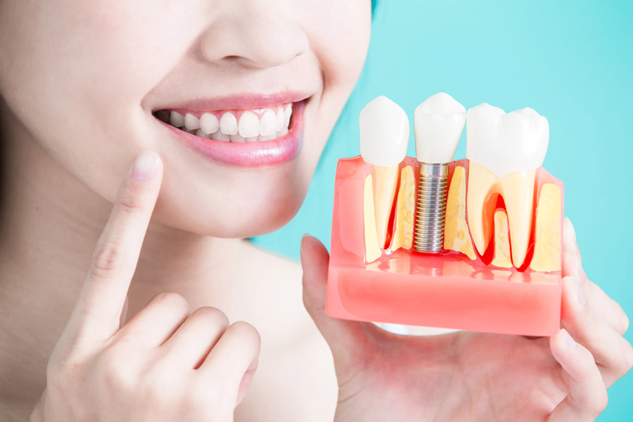 The Cons of Dental Implants