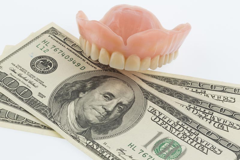 The Costs of CEREC Crowns