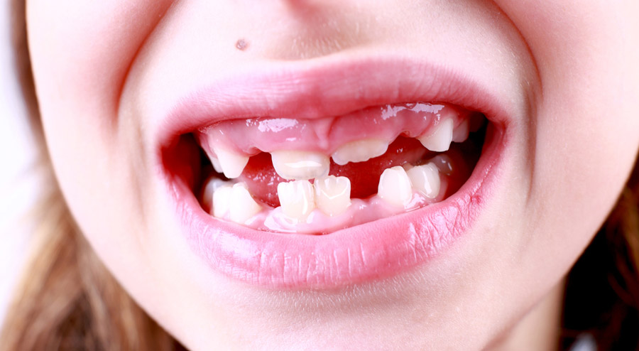 The Most Common Causes of White Spots on Baby Teeth & How to Prevent Them