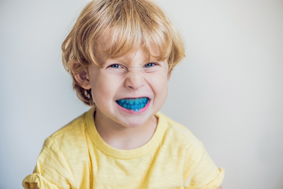 The Numerous Effects of Bruxism on Children