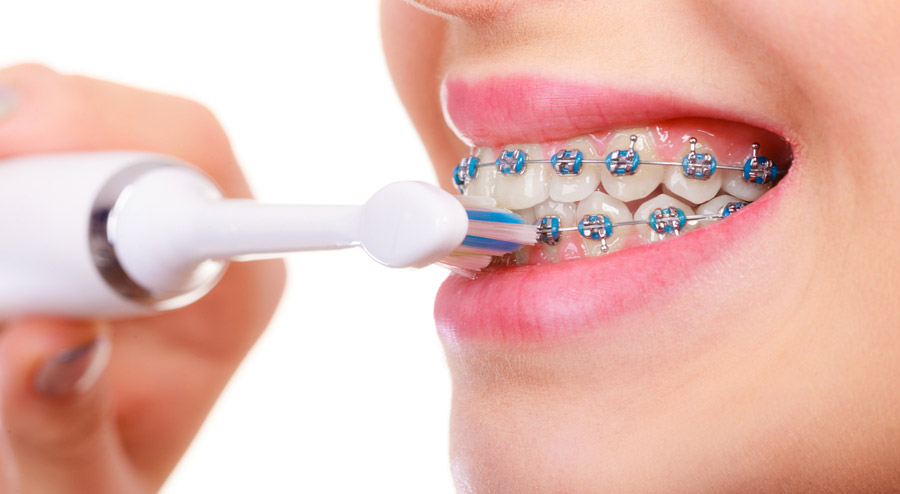 Tools to Help Clean Your Teeth While Wearing Braces