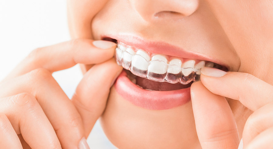 Transparent Teeth Info and FAQs