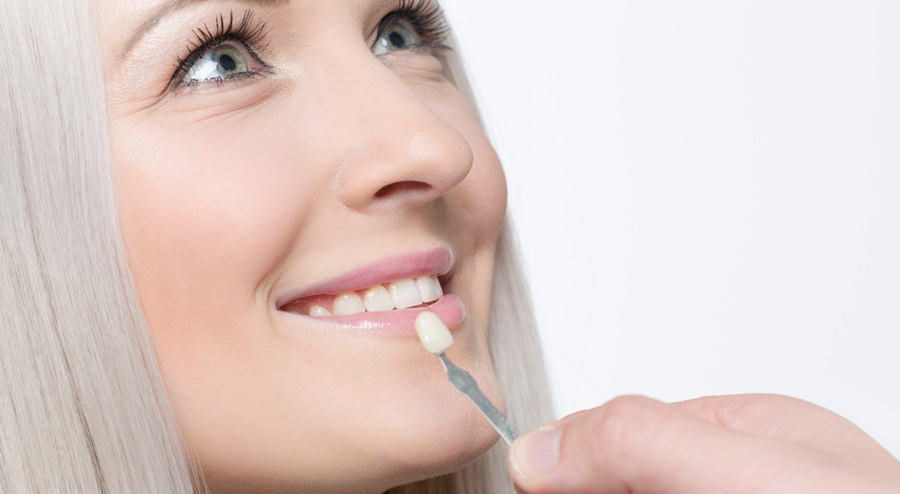 Veneer Teeth Pros and Cons