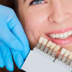 What Are the Best Types of Dental Crowns for Teeth