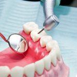 What Do Rotten Teeth Look Like