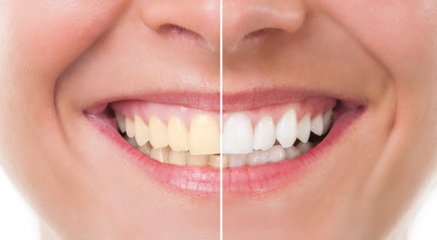What Does a Teeth Whitening Dentist Do