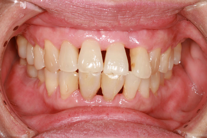 What Is a Periodontist