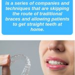 What are At Home Orthodontics – Clear Aligners