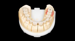 What are the advantages and disadvantages of zirconia crowns