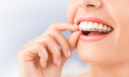 What to Expect from Invisalign