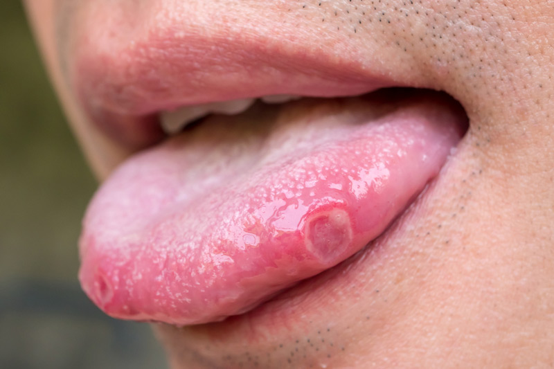 Where Do Mouth Sores Come From