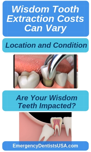 Wisdom Teeth Removal Near Me No Insurance Extractions 24 7