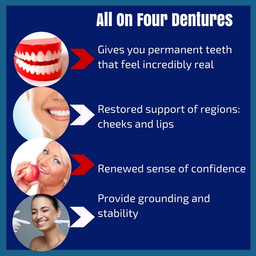 all on four dental