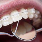 ceramic braces image