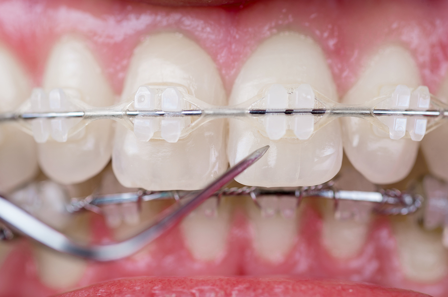 ceramic braces image