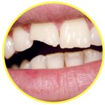 chipped or broken tooth