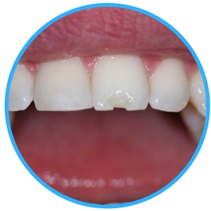 chipped or broken tooth el paso texas