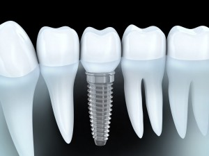 dental implants detroit mi